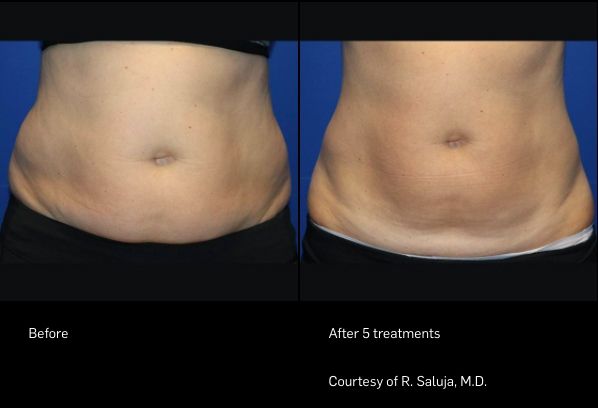 FlexSure Before and After