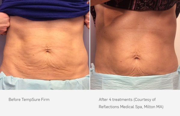 TempSure Firm Before and After
