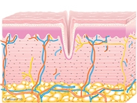 Graphic of Untreated Skin